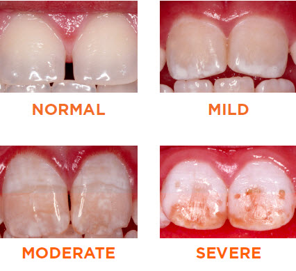 What is Fluorosis