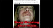 Dr Confirms Masks Spread Disease Not Stop It.3.